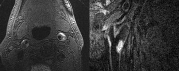 Magnetic resonance images of the carotid arteries showing intraplaque hemorrhage (bright regions)