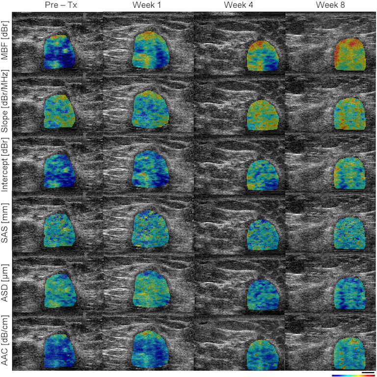 Ultrasound-based imaging technique