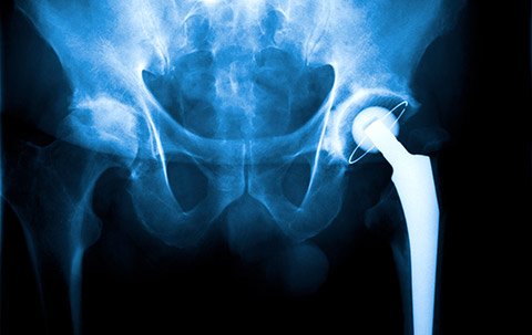 Discovering the drawbacks of double-booking hip surgeries