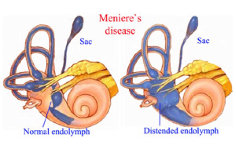 Meniere's Disease diagram: a normal endolymph and a distended endolymph