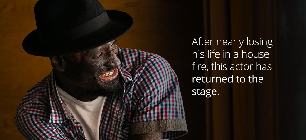 After nearly losing his life in a house fire, this actor has returned to the stage
