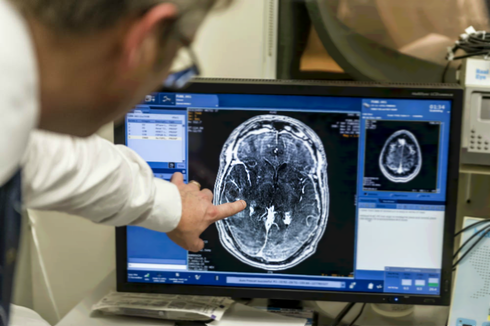 Researcher points at brain scan