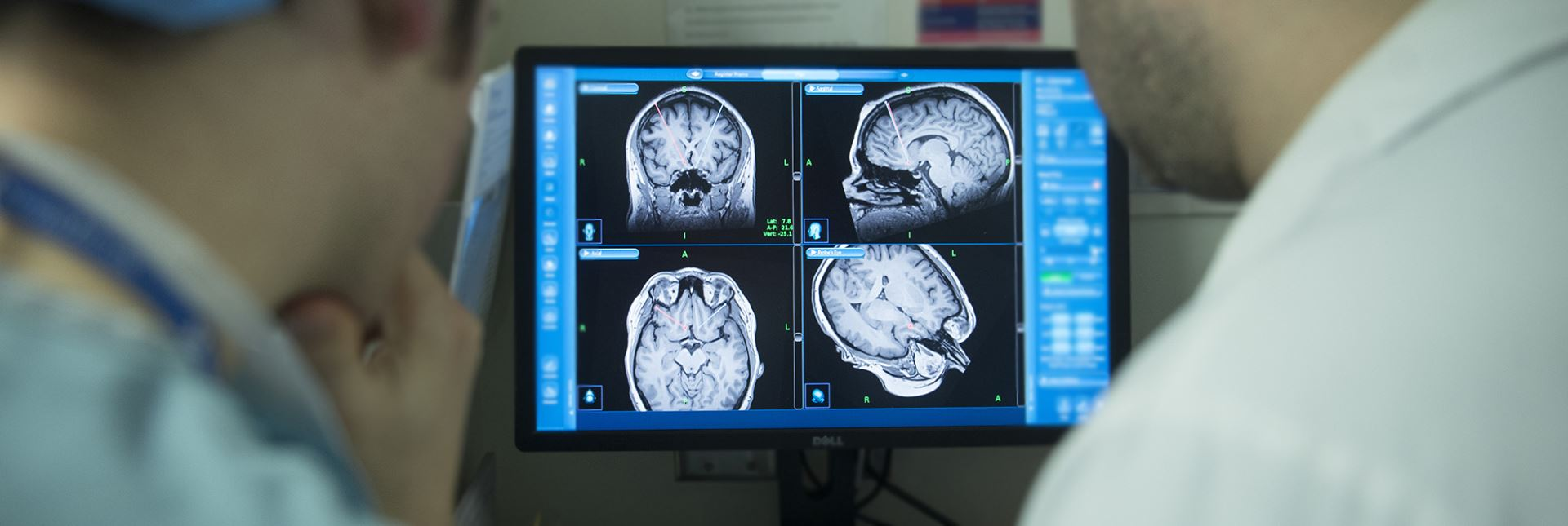 Clinicians view a monitor with a brain scan
