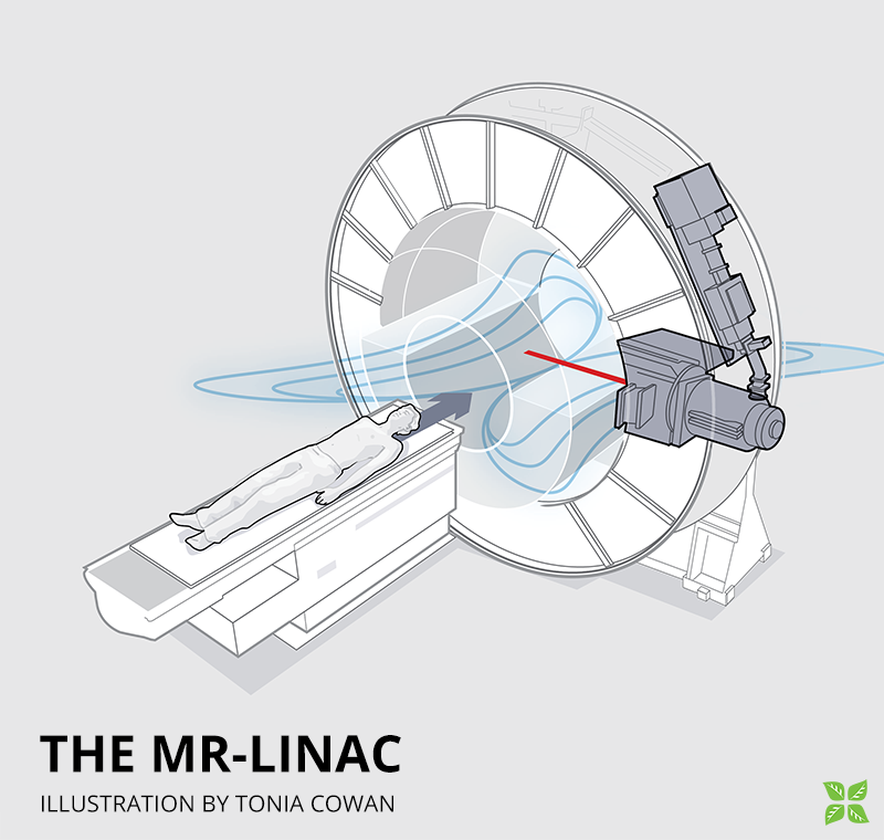 MR-Linac illustration by Tonia Cowan
