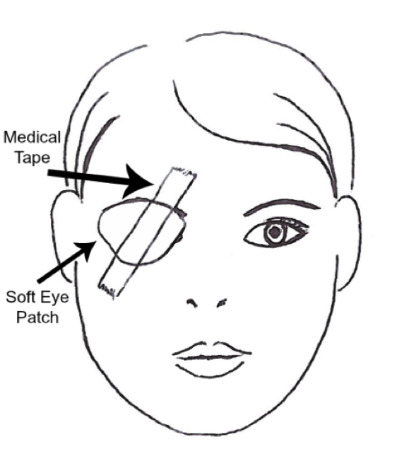 bell s palsy eye patch pictures to pin on pinterest