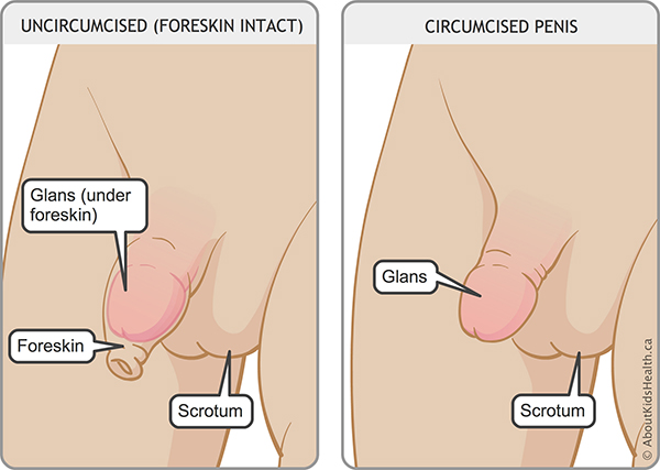 What is the difference between a circumcised and uncircumcised penis