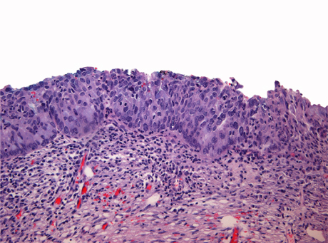 Adenocarcinoma in situ Stratified type